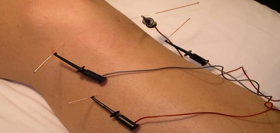 PSO acupuntura_leganes_madrid_electroacupuntura